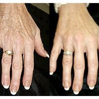 http://clinicadrcampos.com/site_files/images3/radiesse-handaugmentation.jpg