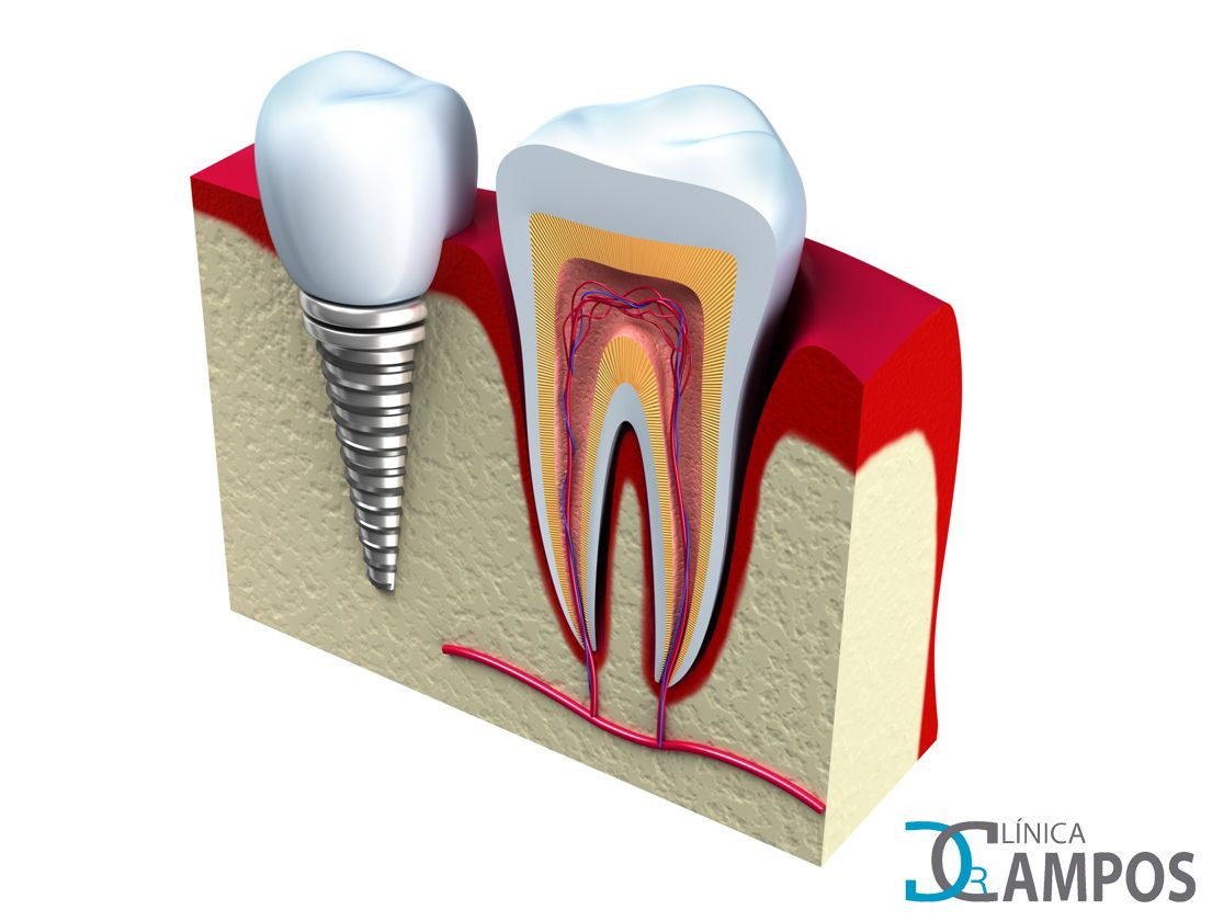 PORQUE LOS IMPLANTES DENTAL SON DE TITANIO