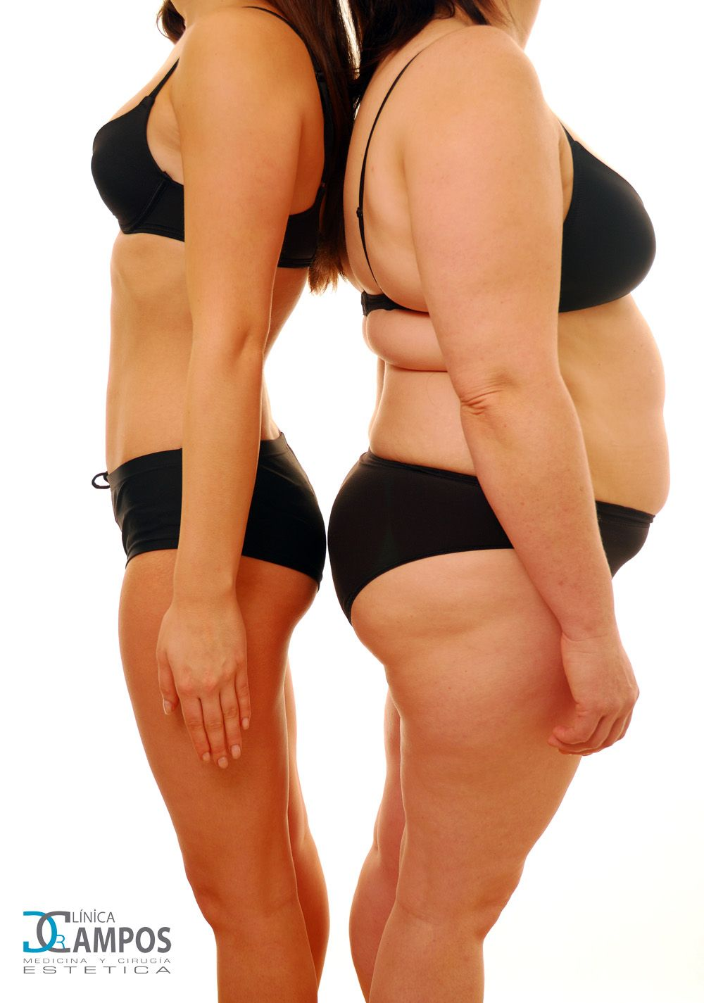 OZONE THERAPY TO LOSE WEIGHT AND SHOW OFF A NEW FIGURE