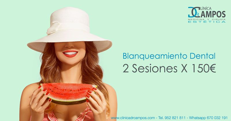 Blanqueamiento dental profesional completo 2 sesiones x 150€
