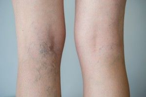 Varicose Vein Removal - Dr  Campos Clinic - Marbella