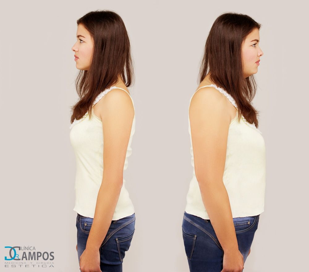 OZONE THERAPY TO LOSE WEIGHT AND SHOW OFF A NEW FIGURE - Dr  Campos