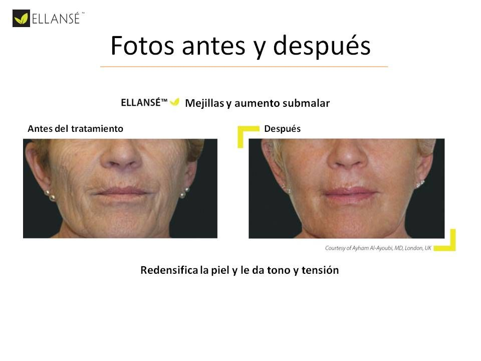 ELLANSE – THE LATEST IN FILLERS  CORRECTS WRINKLES WHILE