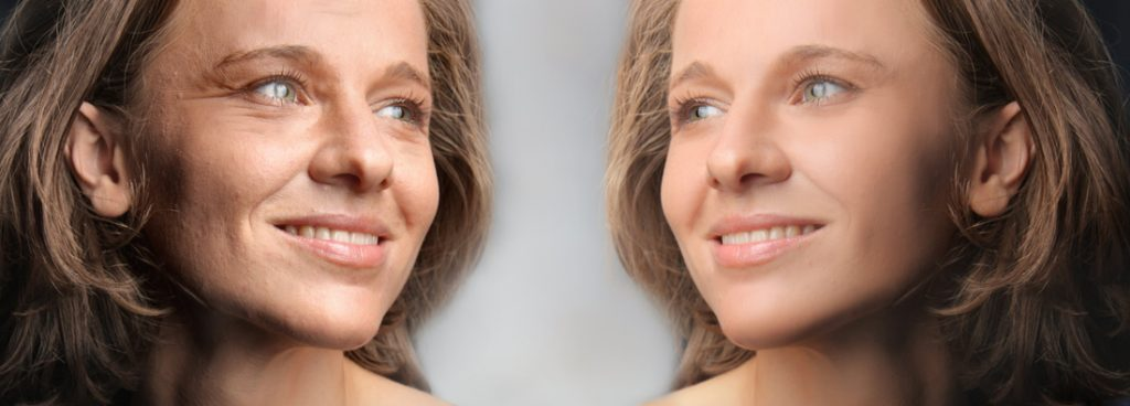 WE ARE SELECTING 2 PACIENTS FOR FACIAL REJUVENATION