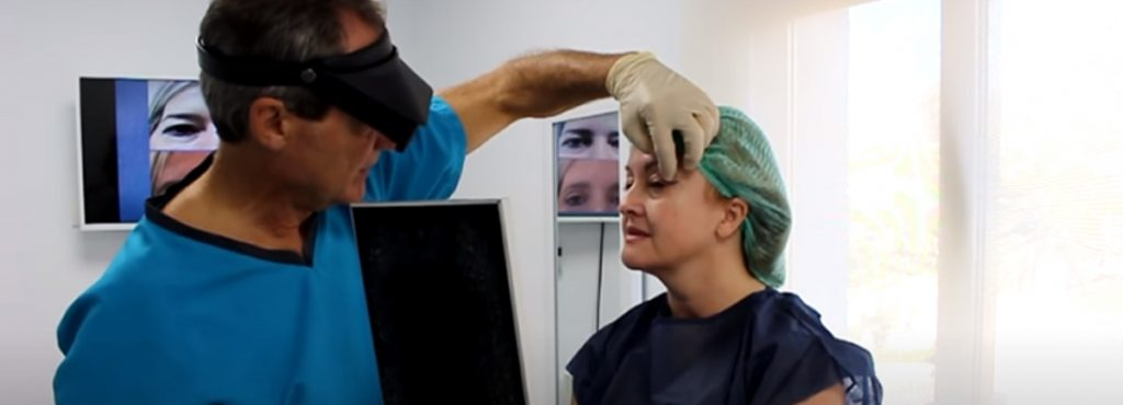 BLEPHAROPLASTY – COMPLETE TESTIMONY, RECOVERY AND RESULTS